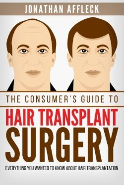 Books about hair transplantation and hair restauration.