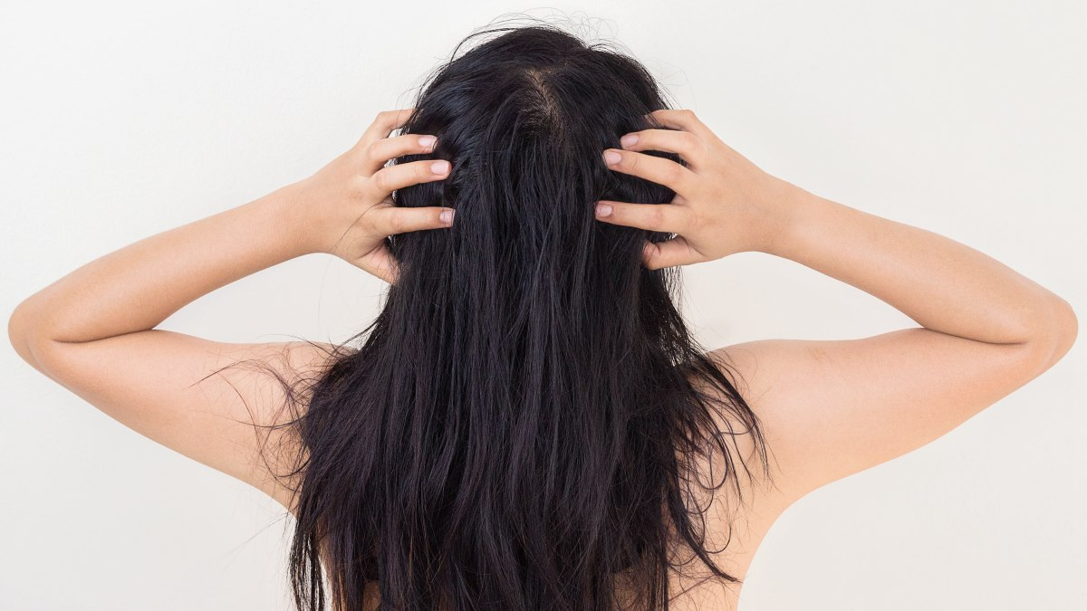 Keratin extensions itchy