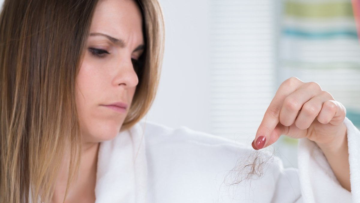 Extreme hair loss due to hypothyroidism, low iron and ...