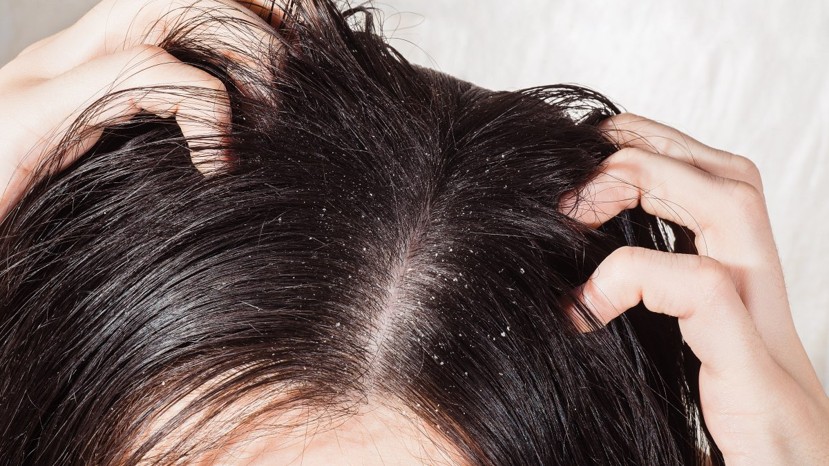 The difference between oily dandruff and dry dandruff