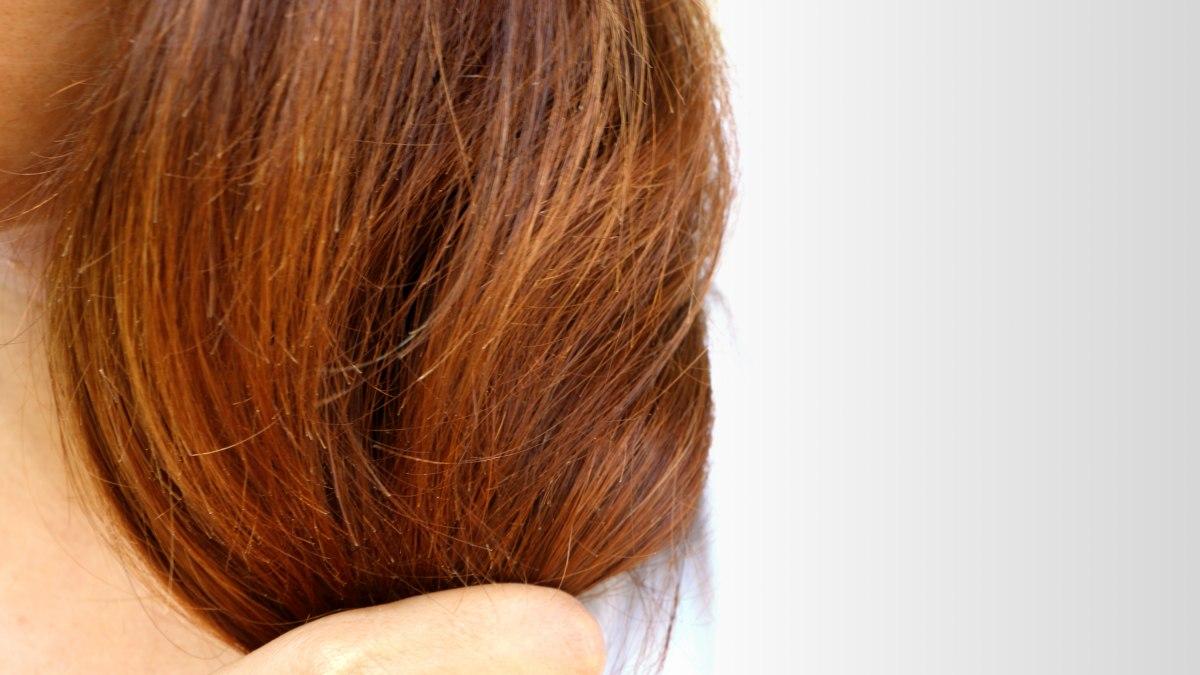 Stevens Johnsons Syndrome Allergic Reaction Hair Loss And
