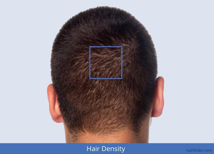 Hair Density Hair Strands Number